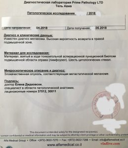 Пункция лимфоузла