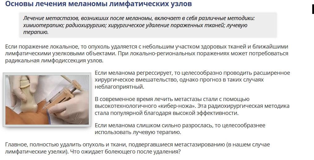 Лечение меланомы лимфоузлов кибер-ножом