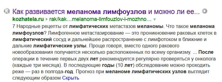 Меланома лимфоузлов