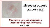 Редкая меланома, или история одного жировичка. Фото