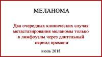 Меланома. Два клинических случая