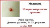 Лечение в Израиле. Меланома. Фото. Биопсия сторожевых лимфоузлов.