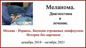 Меланома Бреслоу 1.3 мм