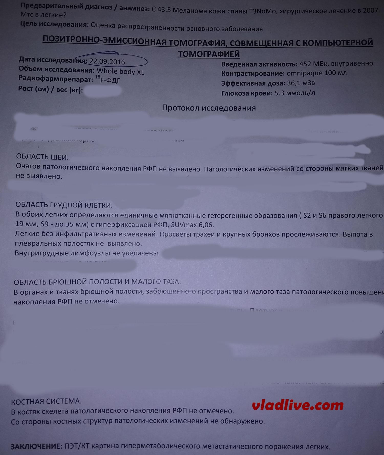 Меланома. Метастазы в легких