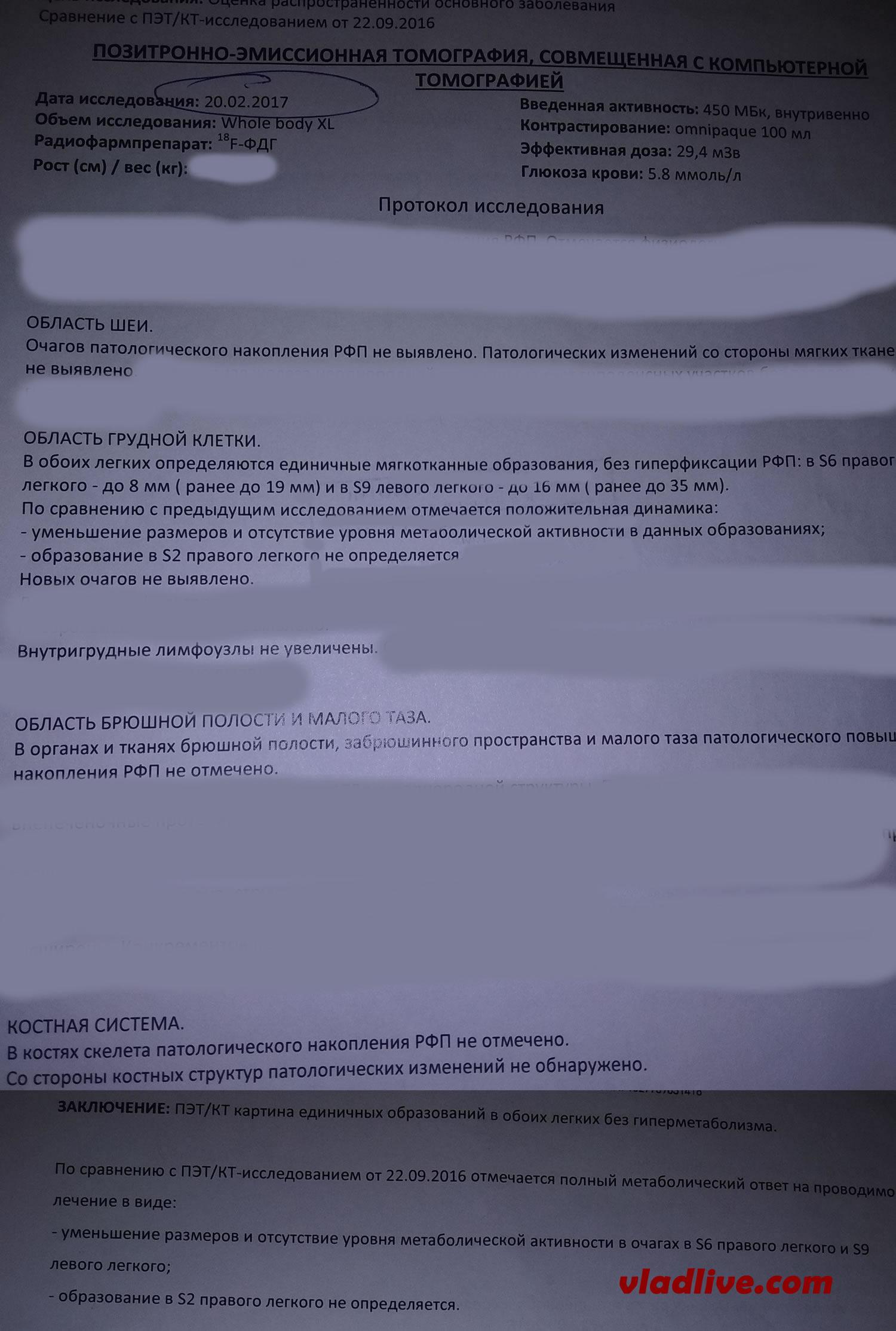 Лечение меланомы. Метастазы в легких