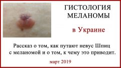 Меланома, гистология в Украине