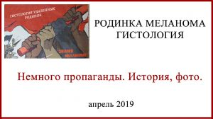 Родинка Меланома Гистология. Пропаганда