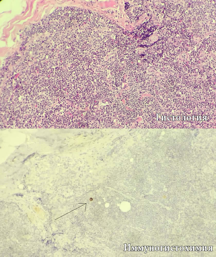 Гистология и ИГХ лимфоузлов
