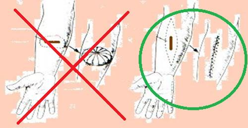 Правильное удаление новообразований кожи (меланомы)