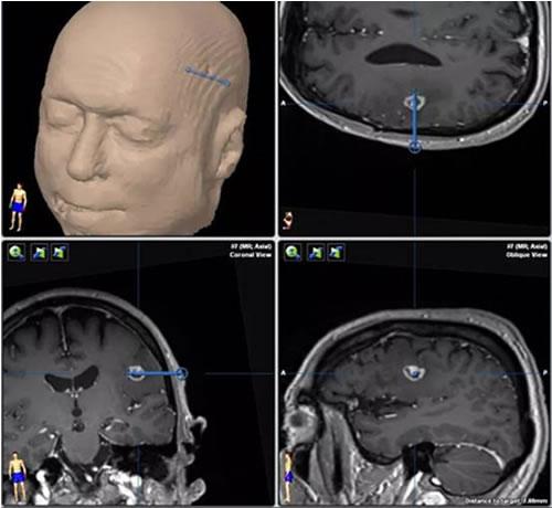 Удаление лазером опухоли в головном мозге