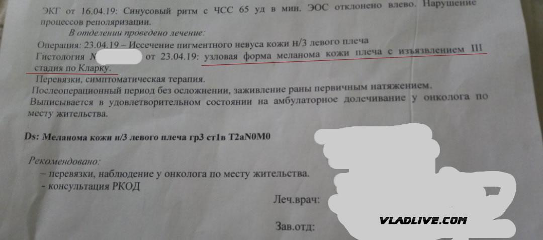 Гистология меланомы в РФ