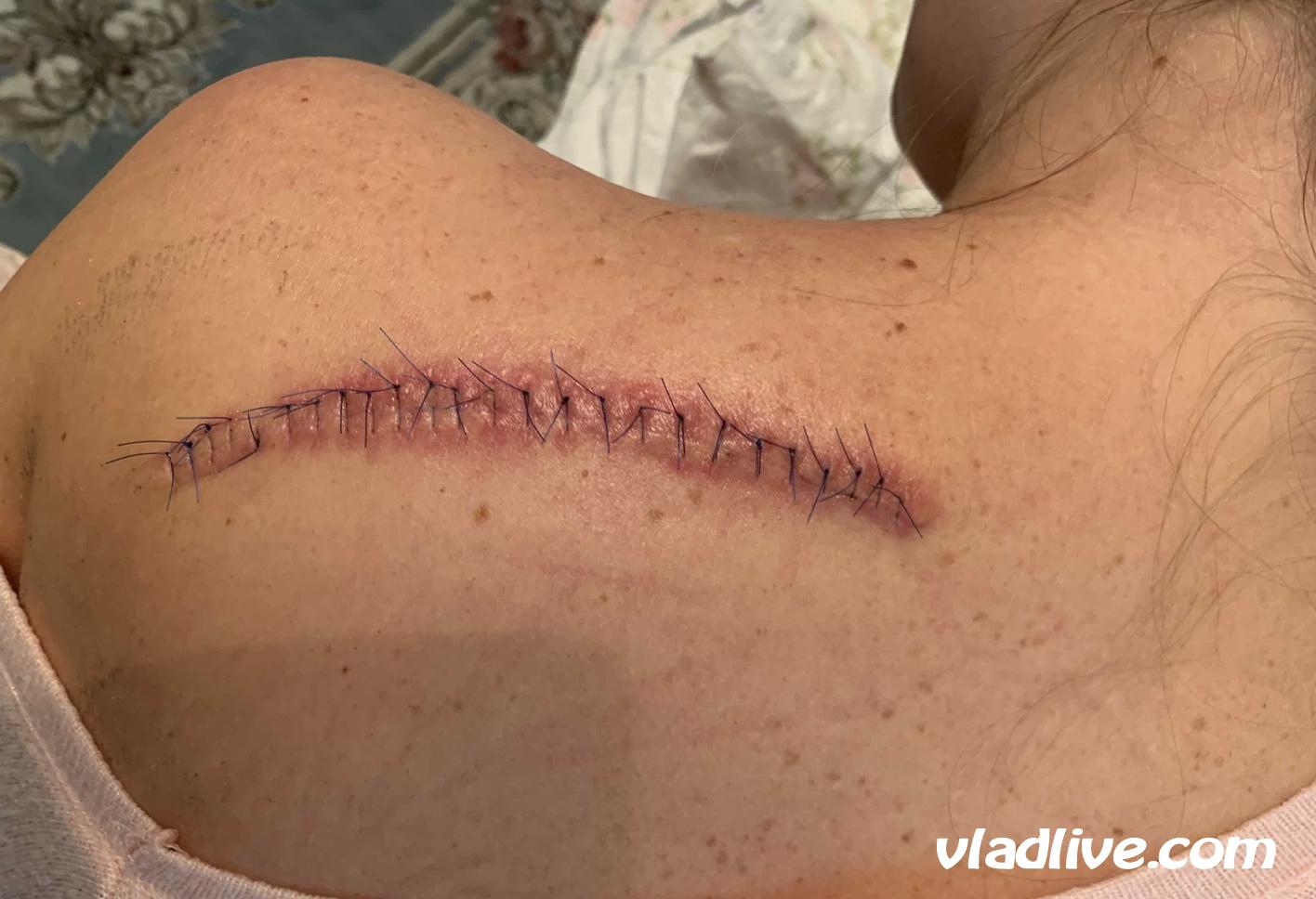 Меланома. Операция в Израиле
