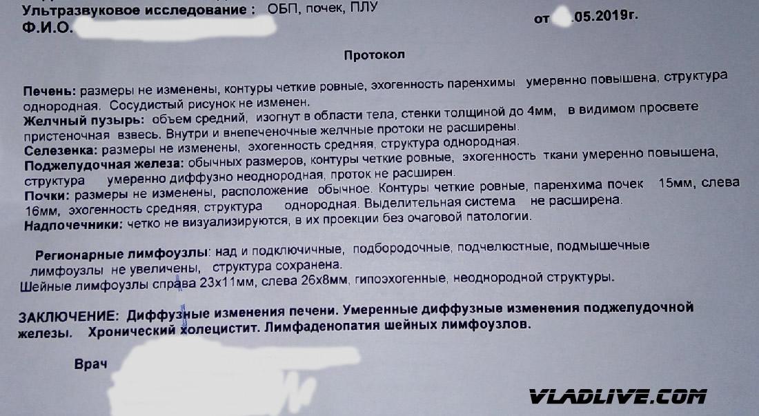 Меланома УЗИ