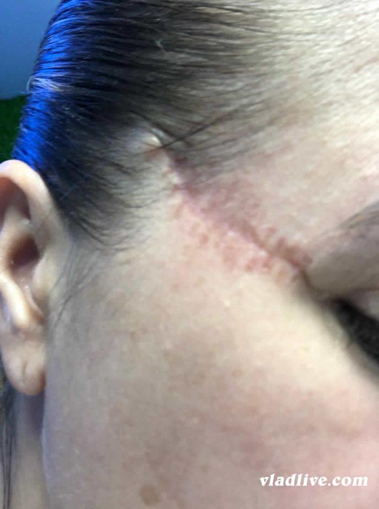 Меланома на виске после операции