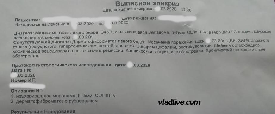 Меланома 5 мм