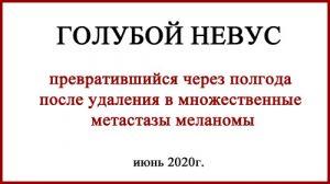 Голубой невус обновлено 17.10.2020