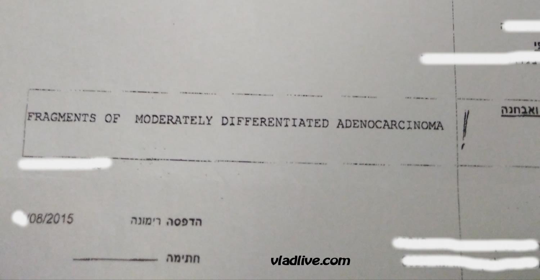 Аденокарцинома жкт лечение в Израиле