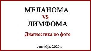 Меланома и лимфома. Диагностика. Фото
