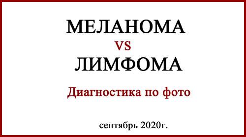Меланома и лимфома. Фото
