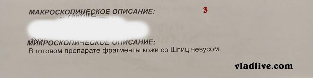 Невус Шпица гистология