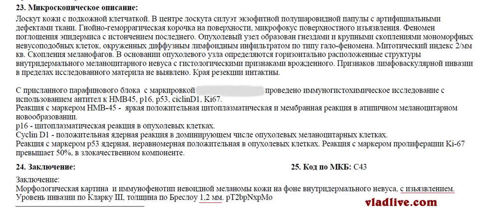 Меланома ИГХ