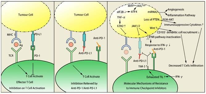 Резистентность меланомы к иммунотерапии