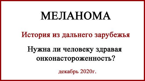 Меланома. Диагностика фото