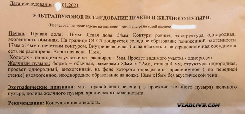Меланома УЗИ метастаз