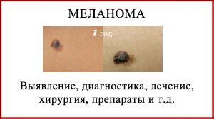 Меланома. Диагностика и лечение