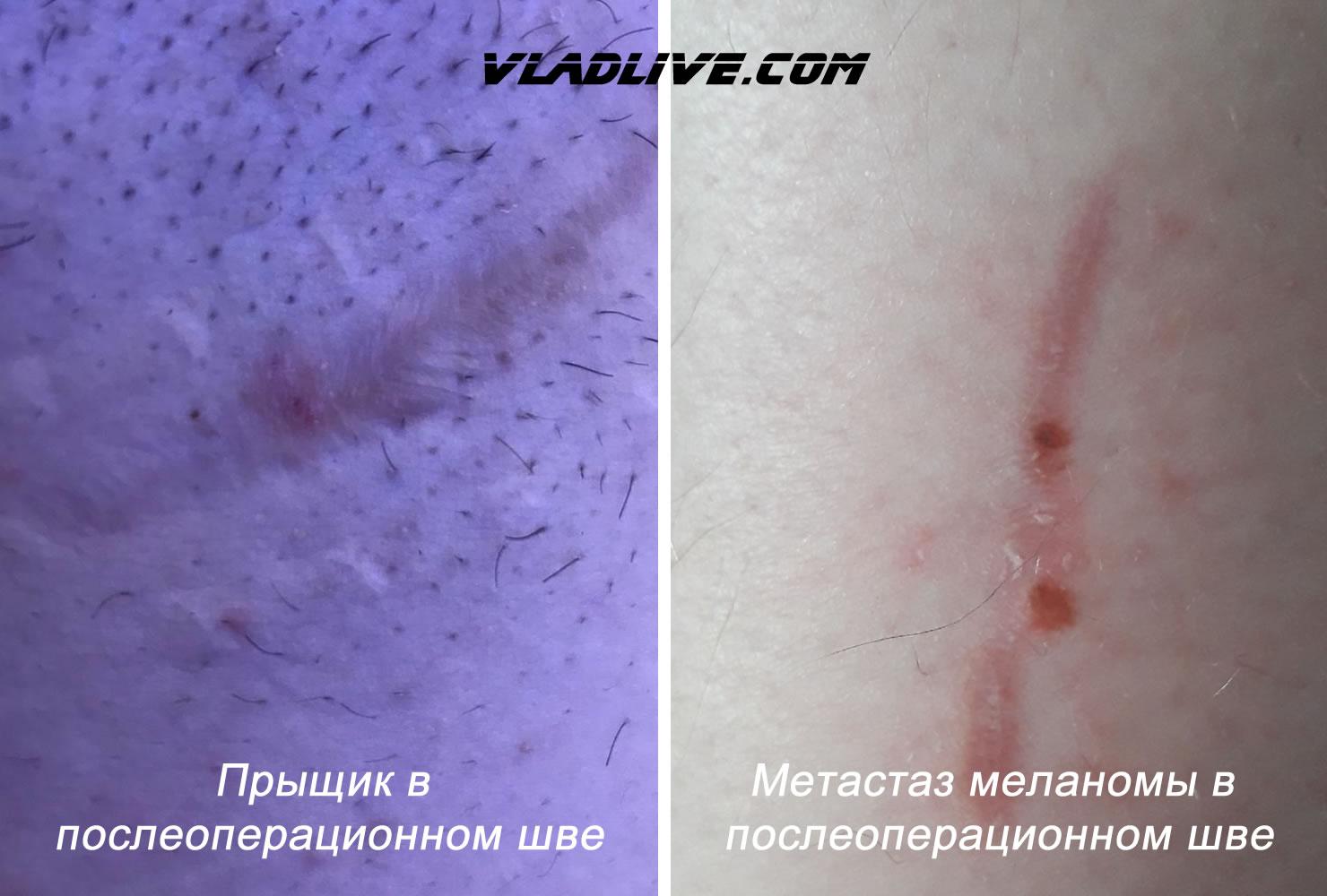 Метастаз меланомы и прыщик