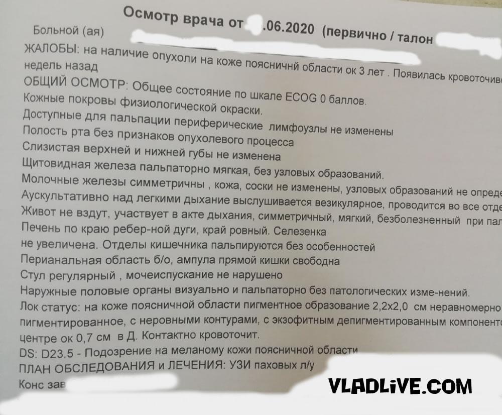 Диагностика меланомы в РФ фото