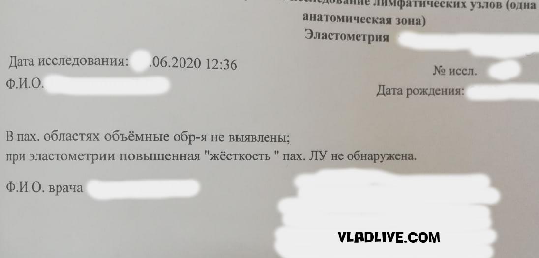 Меланома УЗИ в РФ фото