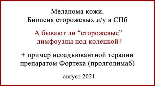 Биопсия сторожевых лимфоузлов БСЛУ в Санкт-Петербурге