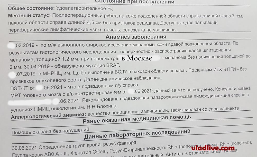 БСЛУ в Обнинске результат