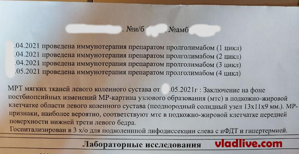 БСЛУ в Санкт Петербурге. Пролголимаб, после рецидива