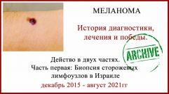Лечение меланомы в Израиле отзыв