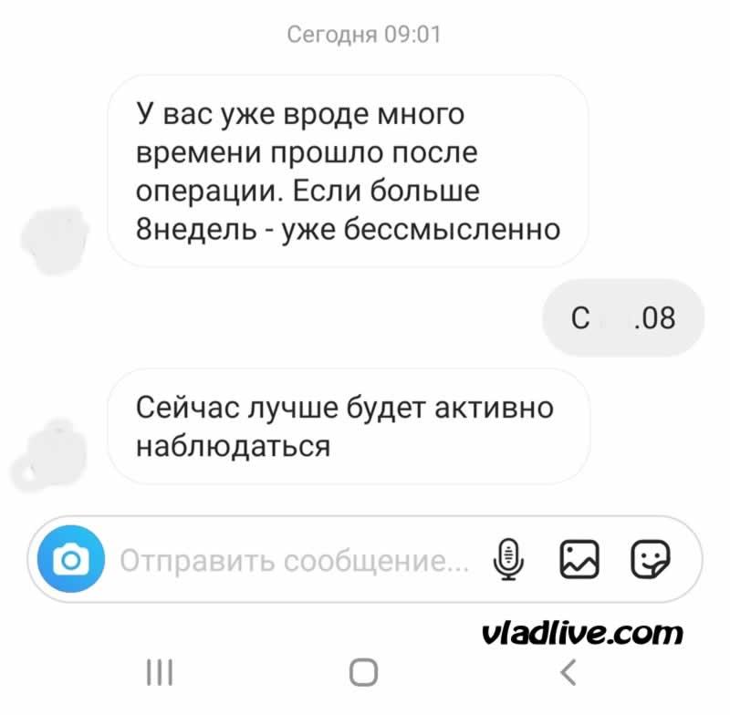 Сроки выполнения БСЛУ в России