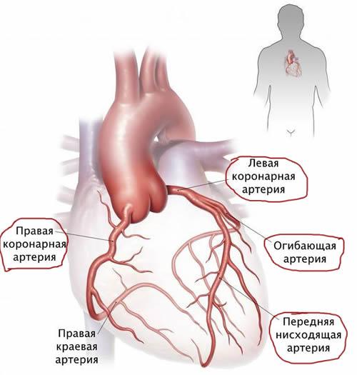 Стеноз артерий сердца